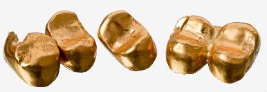 Guldtänder